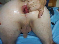 Extreme gaping asshole with 7,5cm plug